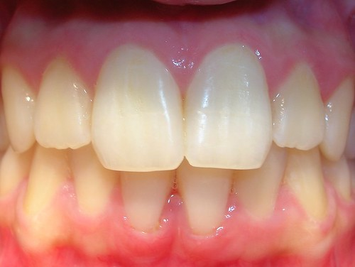 Fisioterapia gingival
