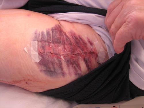Art's scar Apr 2 2009