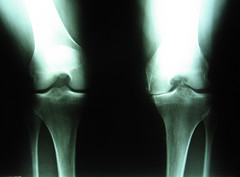 Margie's bum knee (twm1340) Tags: xray bone arthritis knee painful joint cartilage osteoarthritis degenerative
