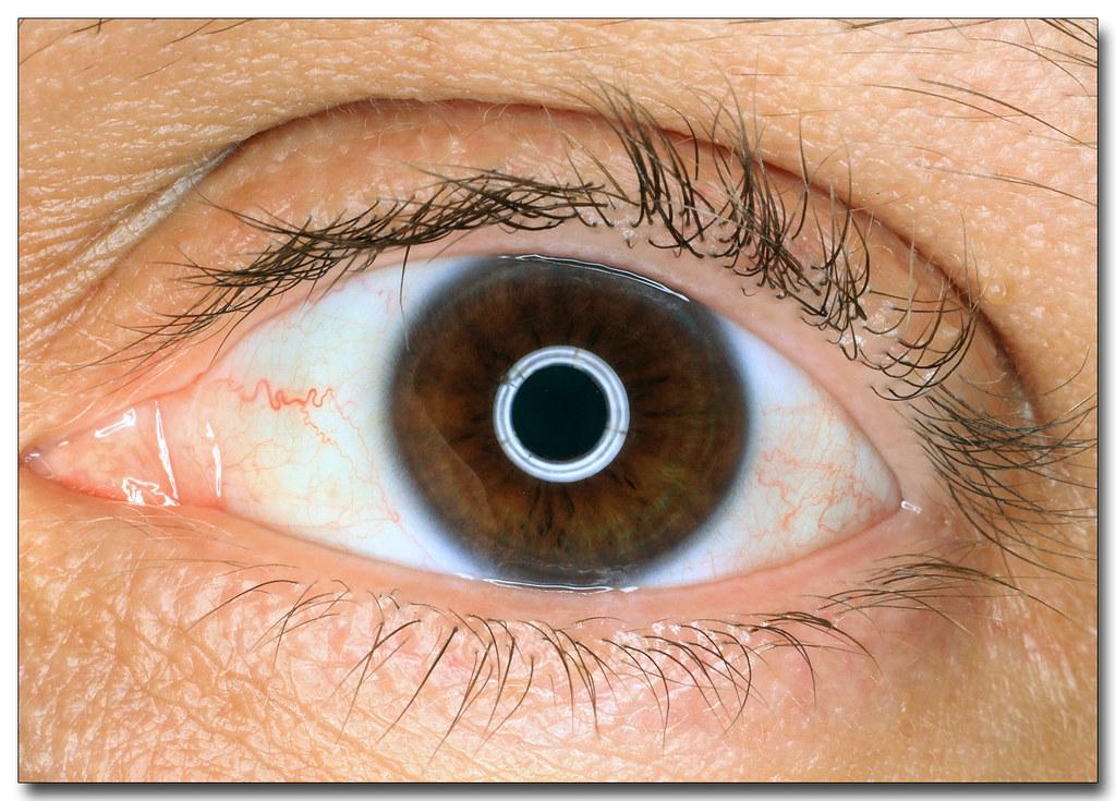 how to get eyelash on eyeball