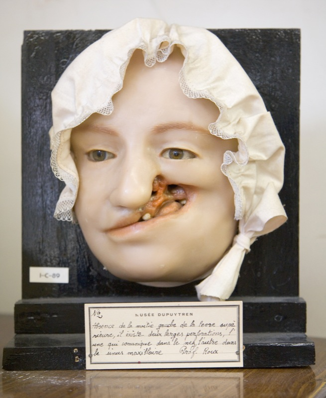 Morbid Anatomy Muse Dupuytren Paris France