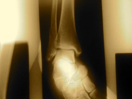 xray broken fibula