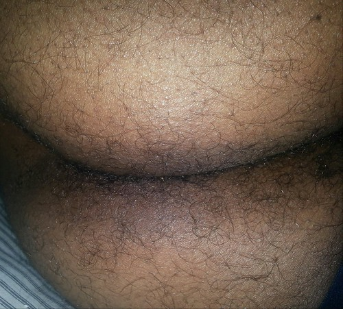 Hairy black ass pictures