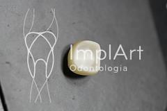 coroa de porcelana (101).jpg (Implart) Tags: saopaulo dentes antesedepois cerec especialista implante implantes reabilitacaooral implantodontia dayclinic cargaimediata implantedentario spaodontologico clinicadentaria implantetotallentedecontatodental implantecompleto cargatotal cargarapida prótesefixa