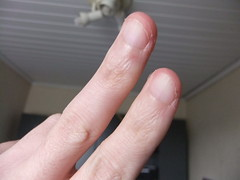 DSCF6983 (ongle86) Tags: ongles nails rongés biting pouce thumb sucé sucking doigts fingers hand mains fetishisme