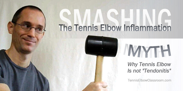 The Tennis Elbow Inflammation Myth