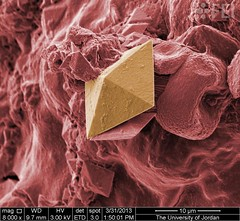 Kidney Stone (FEI Company) Tags: fei microscopy magnification nanotechnology inspect naturalresources geosciences nanoimage feiimagecontest vi
