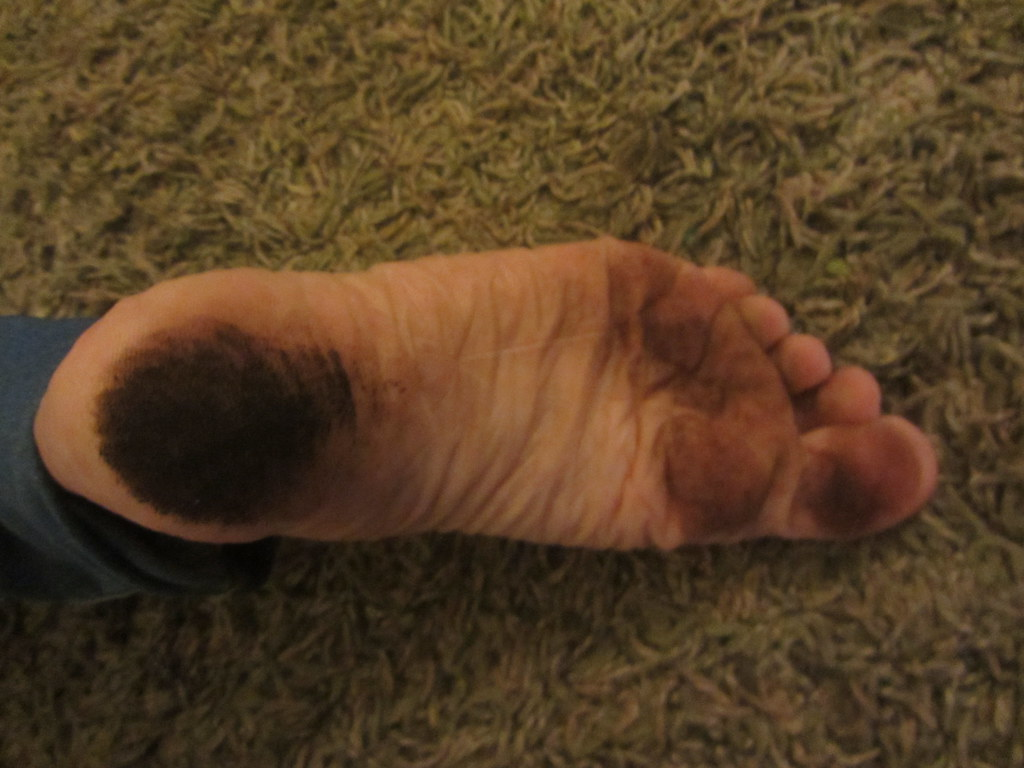 The Worlds Most Recently Posted Photos Of Dusty And Foot -9104