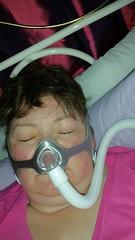 still wearing my auto CPAP machine each night (Carol B London) Tags: cpap osa sleepapnea nasalmask sleep sleeping sleepdifficulties cpapnasalmask nasal mask