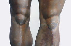 Anavysos Kouros, detail with knees, c. 530 B.C.E.