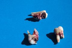 Summer 2013 (arterial spray) Tags: sanfrancisco shadow flesh plaque tooth blood decay teeth naturallight dental gums meat surgery oral cavity wisdom removal dentist 2013 dalliswillard vision:sky=0815 vision:outdoor=0977