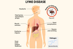 Lyme disease Testing (AONM) Tags: lyme disease testing co infections chronic illness test allergy clinic nutritional labs tests