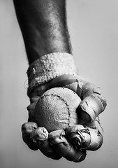 Herida de grado 6º (Jose Manuel Torriatte) Tags: blackandwhite bw blancoynegro bn deporte dolor venda pelota josémanuel pelotari cicatriz heridas vendaje suturar pelotavasca torriatte suturas josémanueltorriatte