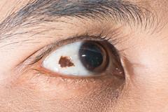 conjunctival nevi (ARZTSAMUI) Tags: test eye lamp see patient medical vision health human doctor specs medicine sight care clinic visual disease diagnostic diagnosis cornea slit examination ophthalmology ophthalmologist nevi nevus conjunctival