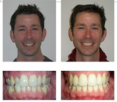 crown and bridges (corbindentalatbayside) Tags: bridge dental care bayside permanent oyster bay partial for mouth