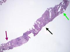 Invasive adenocarcinoma and atypical adenomatous hyperplasia - Case 283 (Pulmonary Pathology) Tags: microscopic aah invasive lung atypical adenocarcinoma hyperplasia acinar adenomatous lepidic atypicaladenomatoushyperplasia