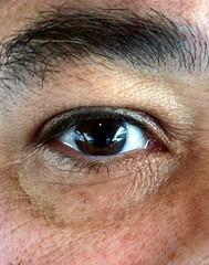 eye myeye righteye dilatedeye