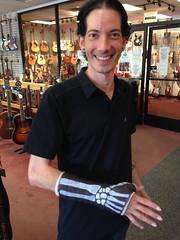 cast design bones (H3C70R del Angel) Tags: cast xray wrist longboarding brokenbones wristbones wristcast castdesign