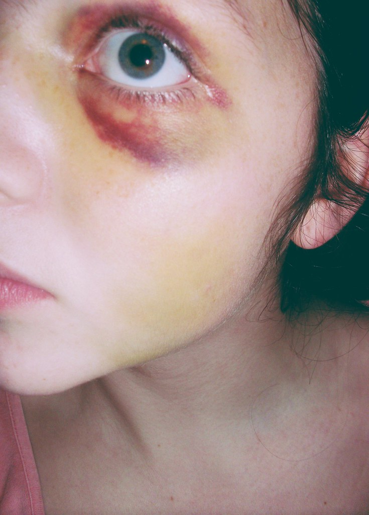 The Worlds Most Recently Posted Photos Of Blackeye And Bruise