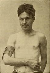 meningococci image