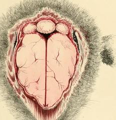 Anglų lietuvių žodynas. Žodis cerebrovascular reiškia smegenų kraujotakos sutrikimai lietuviškai.