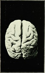 Anglų lietuvių žodynas. Žodis mental abnormality reiškia psichikos anomalijų lietuviškai.