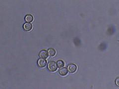 safale us-05 (Bryan    Doty) Tags: wild home beer brewing images micro yeast sour brew microscope bacteria cantillon drie fonteinen brettanmonyes