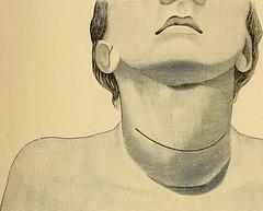 Anglų lietuvių žodynas. Žodis general anaesthetic reiškia narkoze lietuviškai.