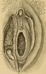 Anglų lietuvių žodynas. Žodis bartholin's gland reiškia bartholin s liaukos lietuviškai.