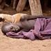 Malaria Patient, Nyangaton, Ethiopia