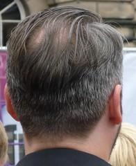 Nape 005 (GusRoman) Tags: haircut hair slick bald scissors crop barber cape crewcut gel clippers balding nape brylcreem