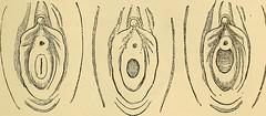 Anglų lietuvių žodynas. Žodis virginal membrane reiškia nekaltybės plėvė lietuviškai.
