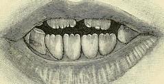 Anglų lietuvių žodynas. Žodis spastic bladder reiškia spastic šlapimo pūslės lietuviškai.