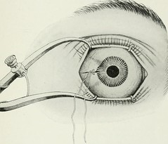 """Image from page 422 of """"The American encyclopedia and dictionary of ophthalmology Edited by Casey A. Wood, assisted by a large staff of collaborators"""" (1913)"""