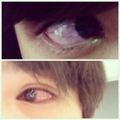 พาลูกมาหาหมอ ตาแดงทั้งคู่เลย