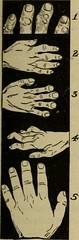 Anglų lietuvių žodynas. Žodis gouty arthritis reiškia podagros artritas lietuviškai.