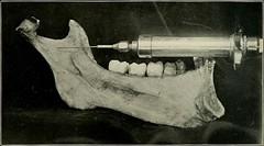 Anglų lietuvių žodynas. Žodis mandibular bone reiškia keičia apatinio žandikaulio kaulų lietuviškai.