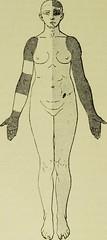 Anglų lietuvių žodynas. Žodis gilles de la tourette syndrome reiškia gilles de la tourette sindromas lietuviškai.