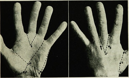 "Image from page 248 of ""Local and regional anesthesia : with chapters on spinal, epidural, paravertebral, and parasacral analgesia, and on other applications of local and regional anesthesia to the surgery of the eye, ear, nose and throat, and to dental p"