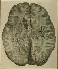 Anglų lietuvių žodynas. Žodis capillary fracture reiškia kapiliarinis lūžis lietuviškai.