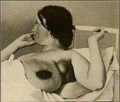 Anglų lietuvių žodynas. Žodis carcinomatous reiškia karcinomas lietuviškai.