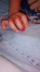 Finger Injury (katieandlee) Tags: family bradford photos finger injury henry 2014