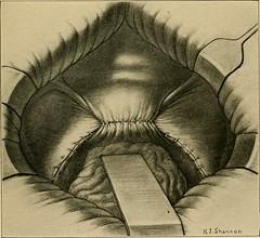 Anglų lietuvių žodynas. Žodis ovaritis reiškia ovaritas lietuviškai.
