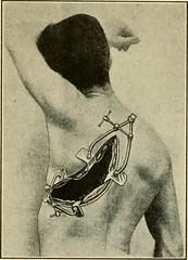 Anglų lietuvių žodynas. Žodis sclerosed reiškia sklerozė lietuviškai.