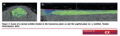 61MD28_1 (sportEX journals) Tags: ultrasound sportex sportsinjury rehabilitiation sportstherapy sportexmedicine tendinopathy