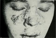 Anglų lietuvių žodynas. Žodis disseminated lupus erythematosus reiškia platinami raudonoji vilkligė lietuviškai.
