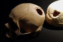 Inca Brain Surgery (hbp_pix) Tags: peru inca inka museo larco moche hbppix