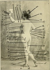 Anglų lietuvių žodynas. Žodis quadriceps femoris reiškia keturgalvio femoris lietuviškai.
