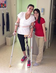 6184 (dbanistair) Tags: crutches prosthesis amputee lhd sak