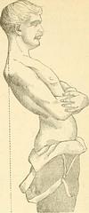 Anglų lietuvių žodynas. Žodis spondylolisthesis reiškia spondilolistezė lietuviškai.